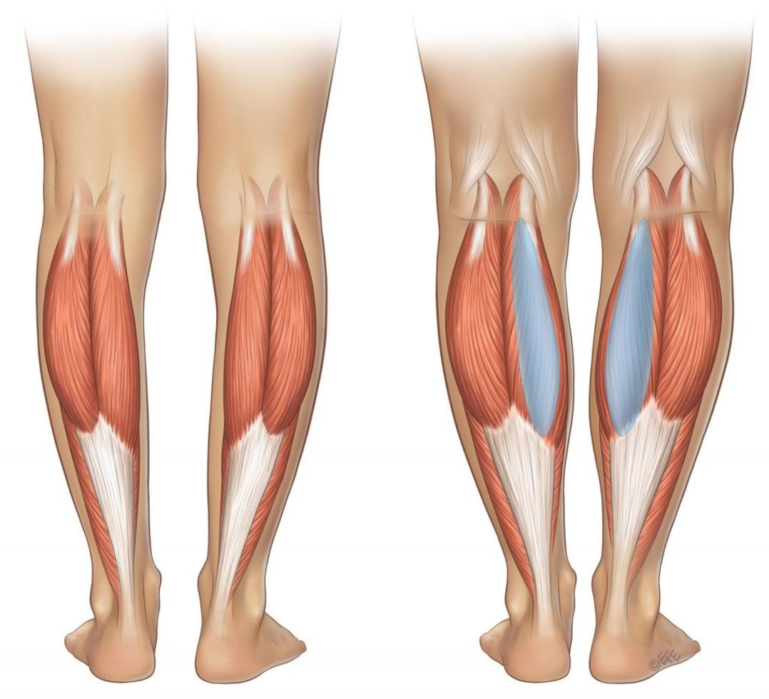 Correction of Shin Shape in Poltava, prices for scraping, customer ...