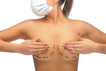 Як організм реагує на грудні імпланти?