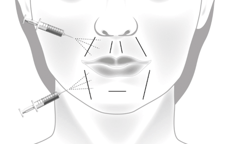 Lipofilling of nasolabial folds