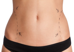 Liposuction of hips and buttocks photo 1