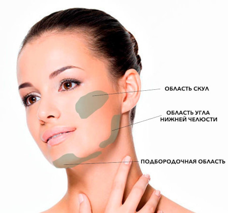 Lipofilling of the cheekbones