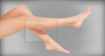 Correction of the shin form (Cruroplasty) photo 1