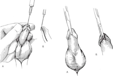 Plastic surgery of the frenum of the penis