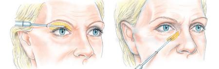Lipofilling around the eyes