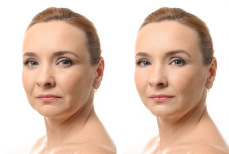 Liposuction of chin and flews