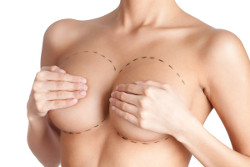 How does the breast with implants behave after delivery? photo 2