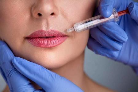 Ботулінотерапія для губ