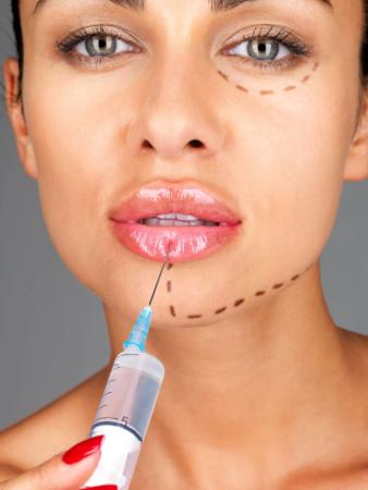Lipofilling of lips