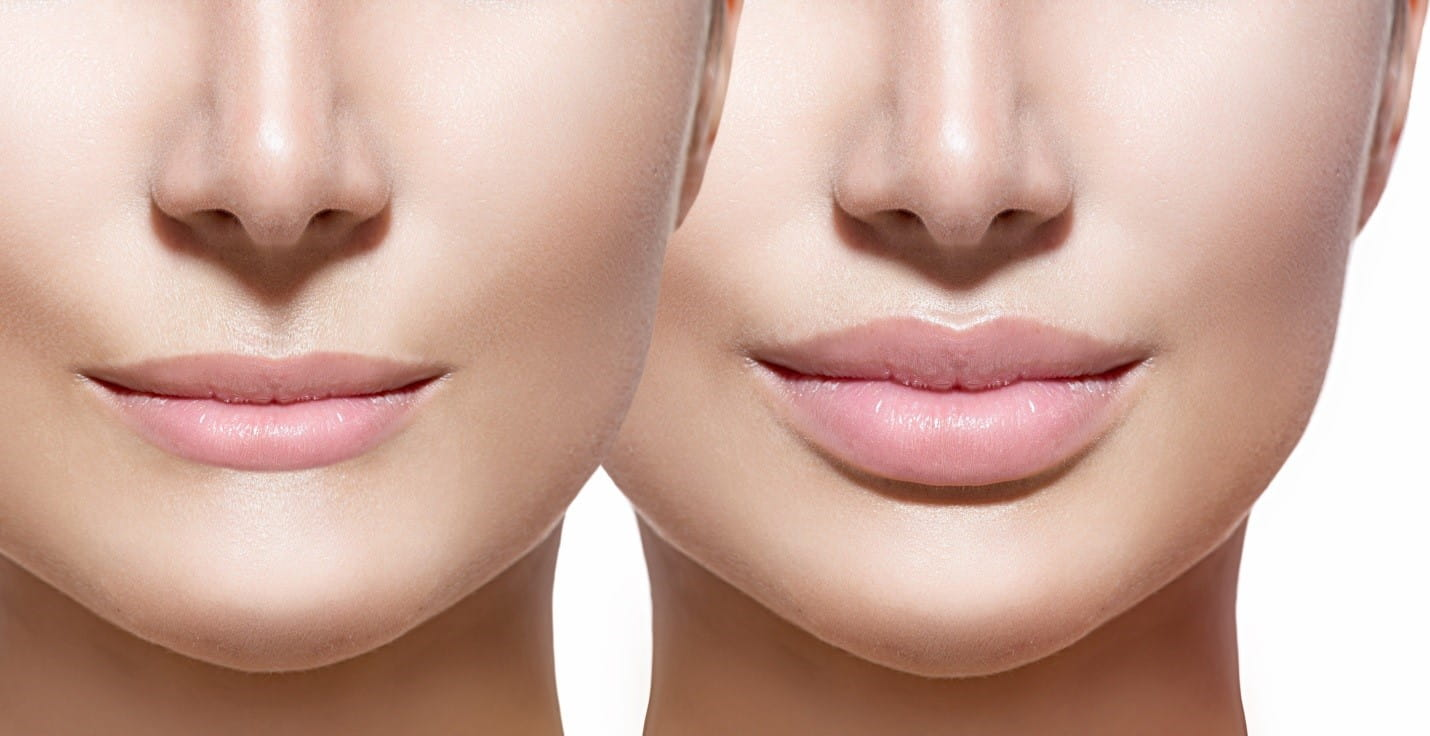 Lip augmentation with hyaluronic acid. Reviews of beauticians. How to increase lips 18