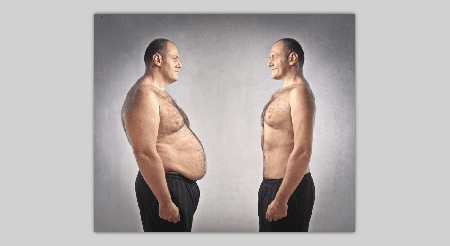Liposuction for men: What are its aspects?
