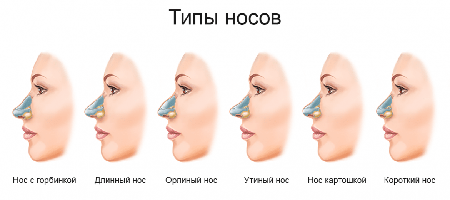 Snub nose – how to correct the shape?