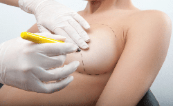 Breast asymmetry: causes and methods of treatment photo 1