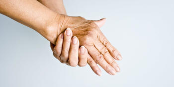 Lipofilling of the hands 3