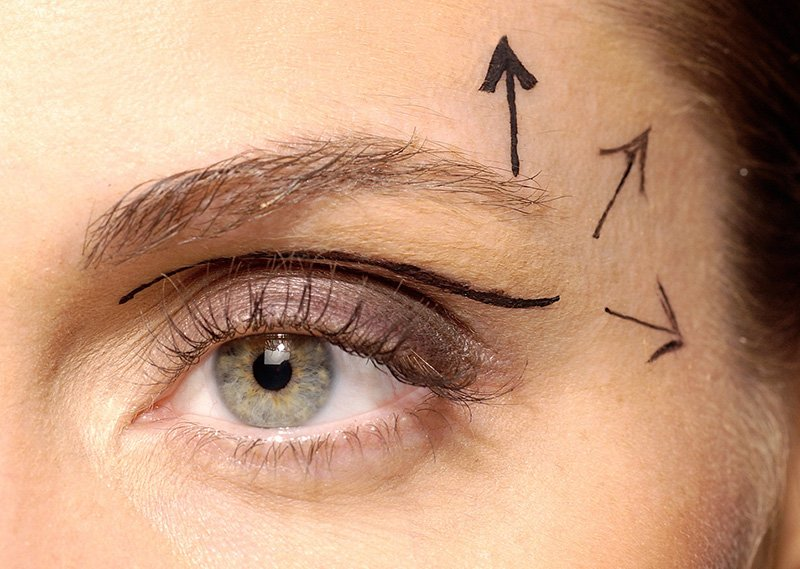 Eyelid surgery (blepharoplasty) photo 2