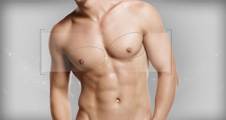 Gynecomastia in men: recovery from surgical treatment