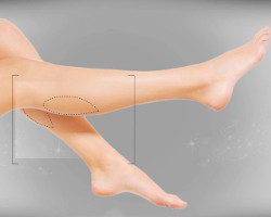 Liposuction of legs photo 1
