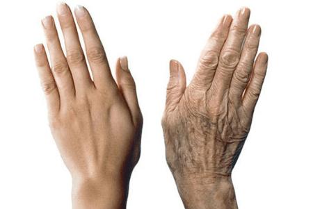 Как вернуть молодость рукам