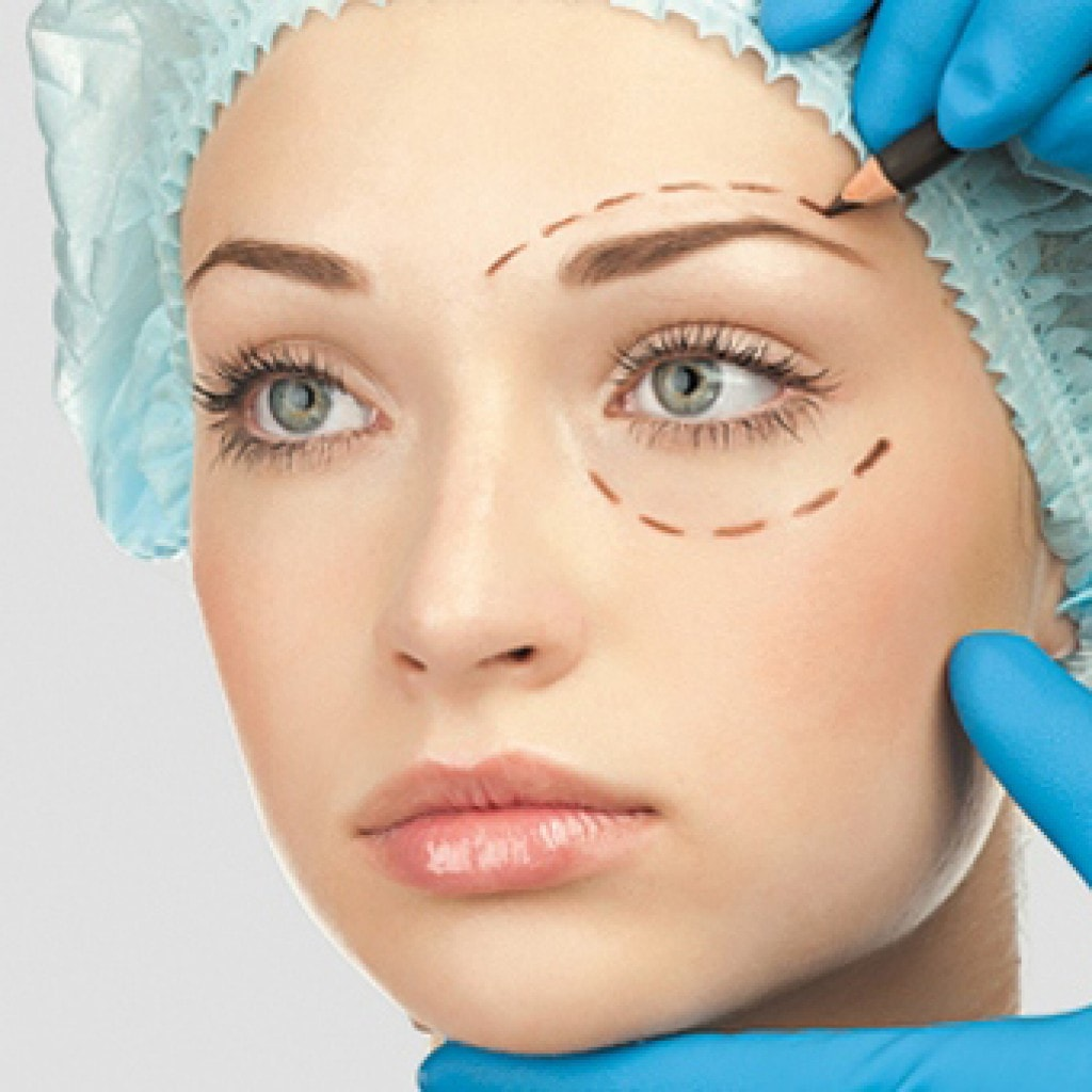 Eyelid surgery (blepharoplasty) photo 1