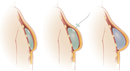 Mammoplasty: when will the implants go down?