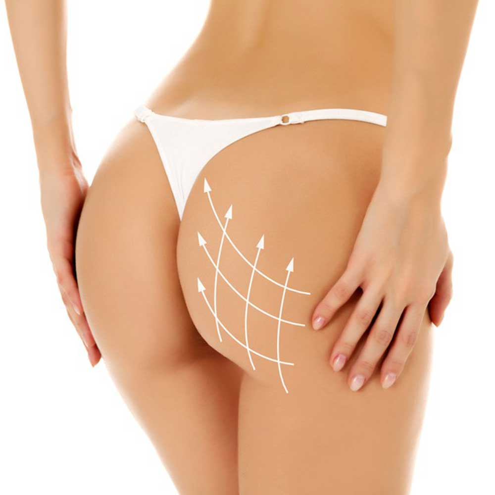 Gluteoplasty (an increase in the buttocks)