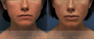 Surgical correction of the shape and volume of the lips (chalinoplasty) image 3884