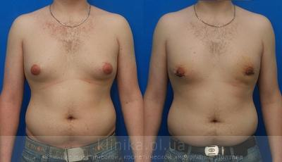 Treatment of gynecomastia image 2916