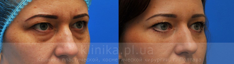 блефаропластика в саратове парамонова и после фото сможете