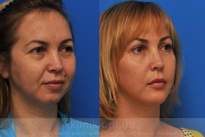 Facelifting image 3929