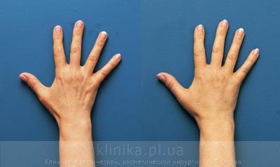 Lipofilling of the hands image 3006