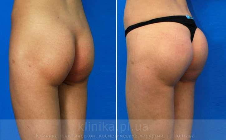 Augmentation of buttock