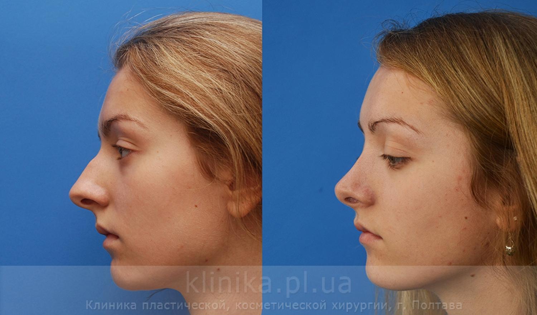 Совет 1: Как уменьшить кончик носа 29