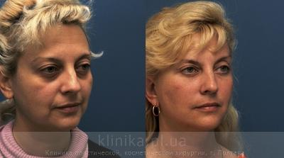Facelifting image 3931
