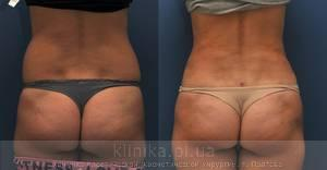 Liposuction image 3477