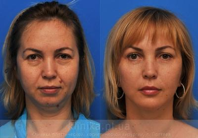 Facelifting image 3928