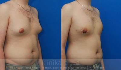 Treatment of gynecomastia image 2917