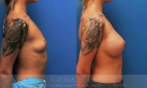 The breast augmentation and breast surgery (the augmentation) image 4004