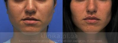 Surgical correction of the shape and volume of the lips (chalinoplasty) image 3886