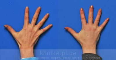 Lipofilling of the hands image 3002