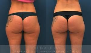 Liposuction image 4137