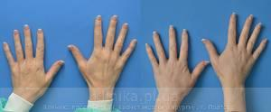 Lipofilling of the hands image 3003
