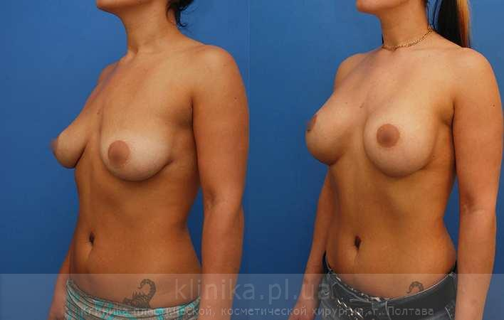 The breast augmentation and breast surgery (the augmentation)