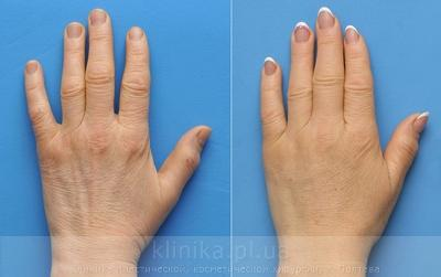 Lipofilling of the hands image 3008
