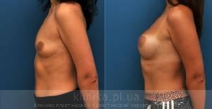 The breast augmentation and breast surgery (the augmentation) image 4132