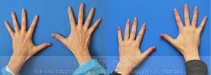 Lipofilling of the hands image 3001