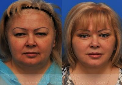 Facelifting image 3932