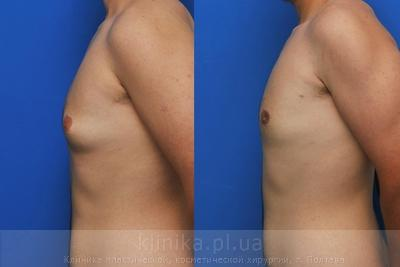 Treatment of gynecomastia image 2915