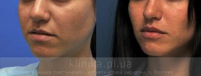 Surgical correction of the shape and volume of the lips (chalinoplasty) image 3887
