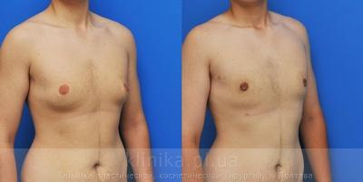 Treatment of gynecomastia image 2914