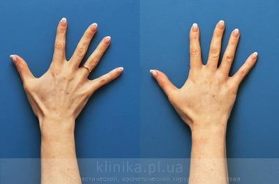 Lipofilling of the hands image 3007