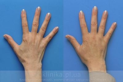 Lipofilling of the hands image 3004